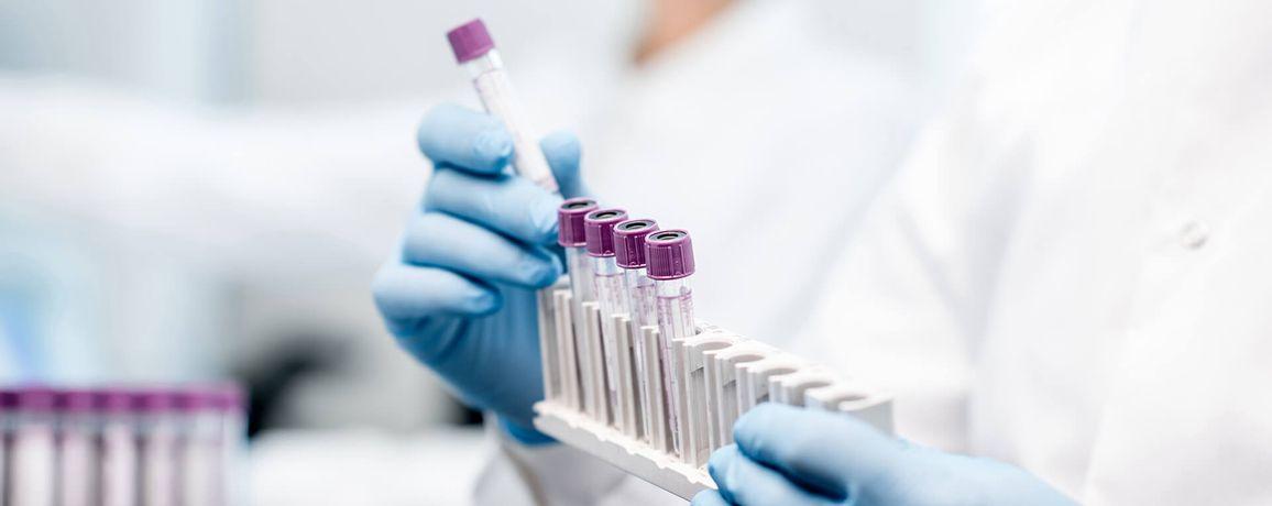 Laboratório-Deltha-Laboratório-de-Análises-Clínicas-Lab-Deltha-Exames-Amostras-de-Sangue.jpg