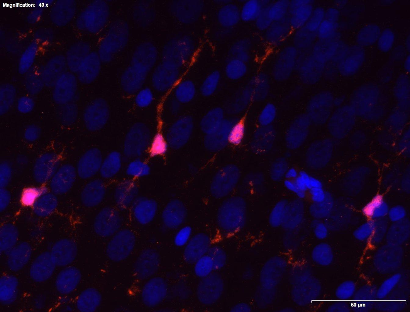 Policing the neural night club: microglia