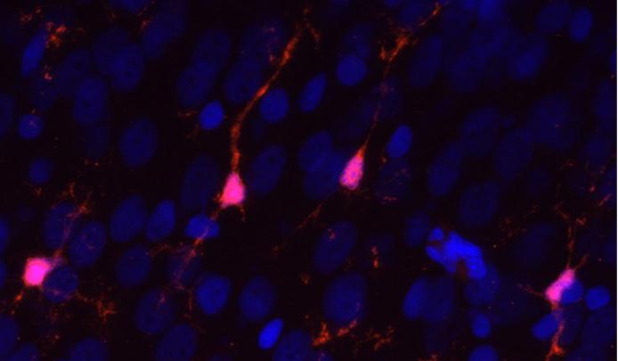 Las microglías, los porteros de nuestra discoteca neuronal