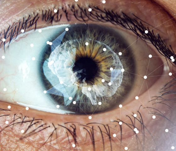 La visión por ordenador en el mundo ordinario: ¿qué es ?