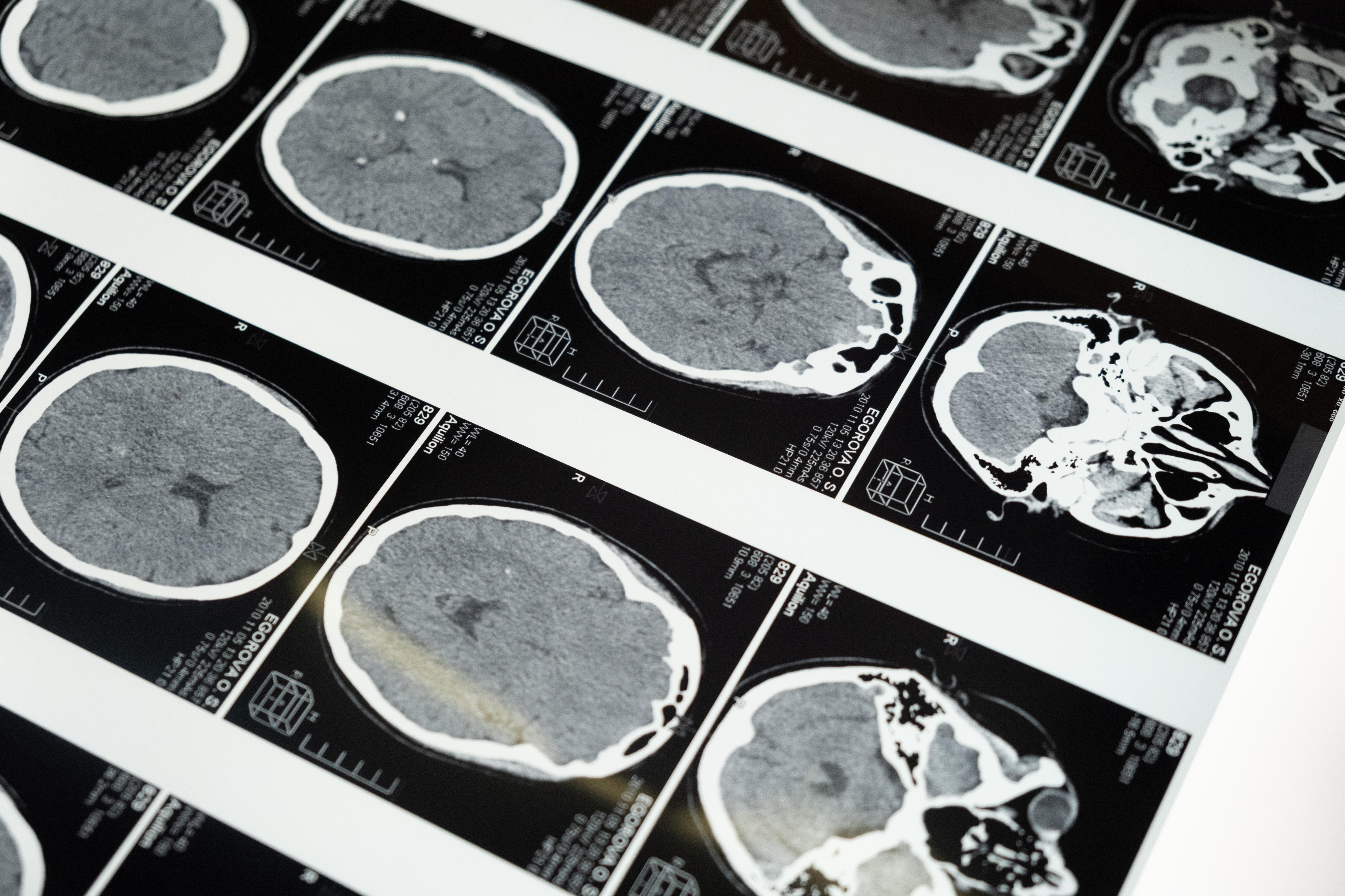 Brain: myths and false beliefs