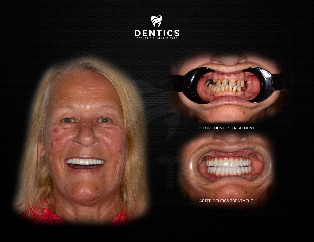 All on 6 Dental Implants Before and After