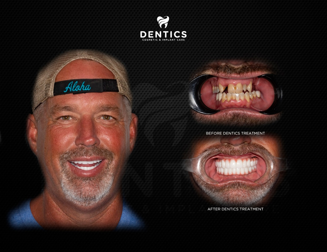 Cosmetic Dentistry All on 6 Dental Before and After