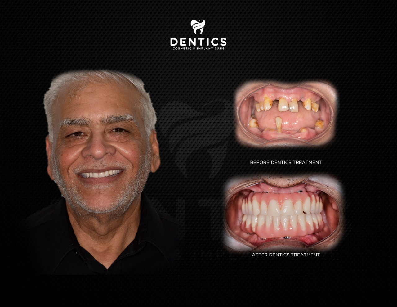 All on 4 Dental Implants with Dentures Before and After