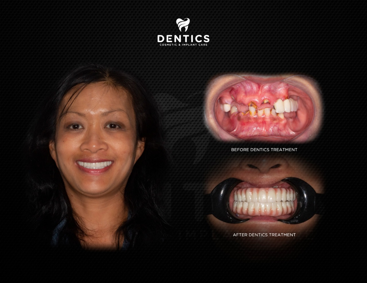 Cosmetic Dentistry All on 6 Crystal Clear Ultra