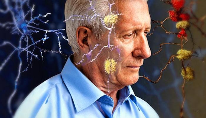 Mal de Alzheimer - 1