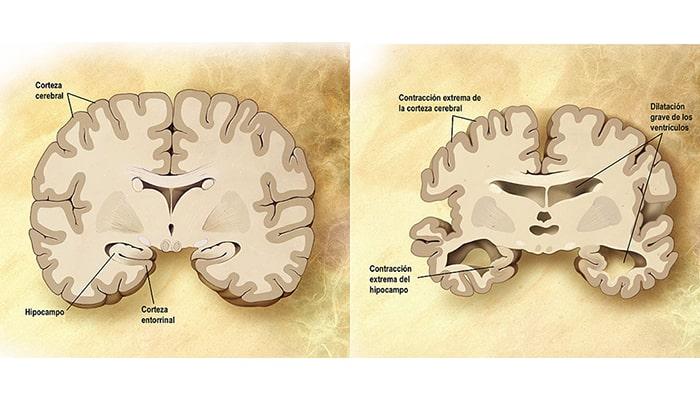 Mal de Alzheimer - 5