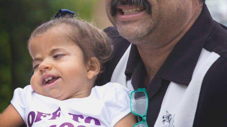 toddler-beats-terminal-diagnosis-of-schinzel-giedi