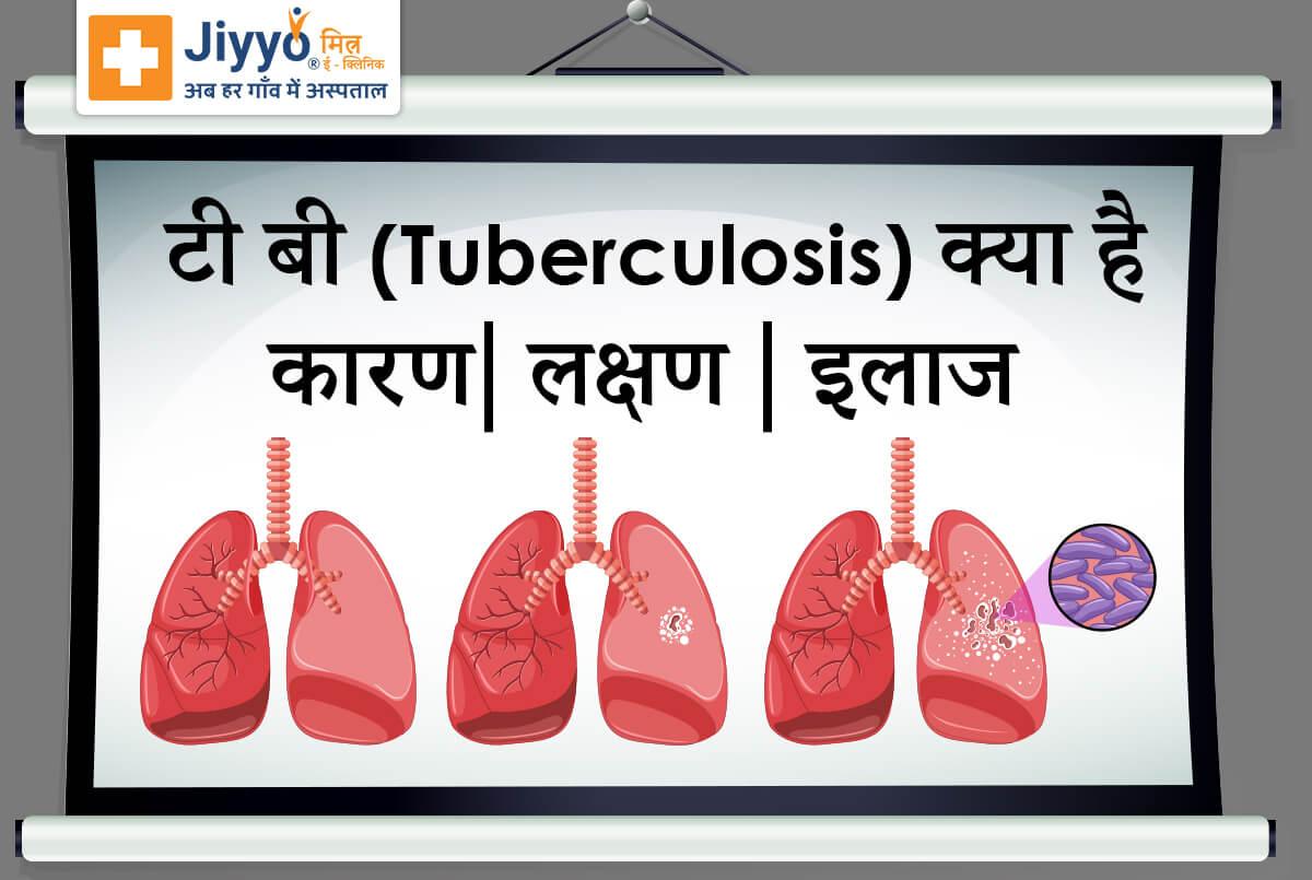 टी बी(Tuberculosis) क्या है - कारण, लक्षण और इलाज !