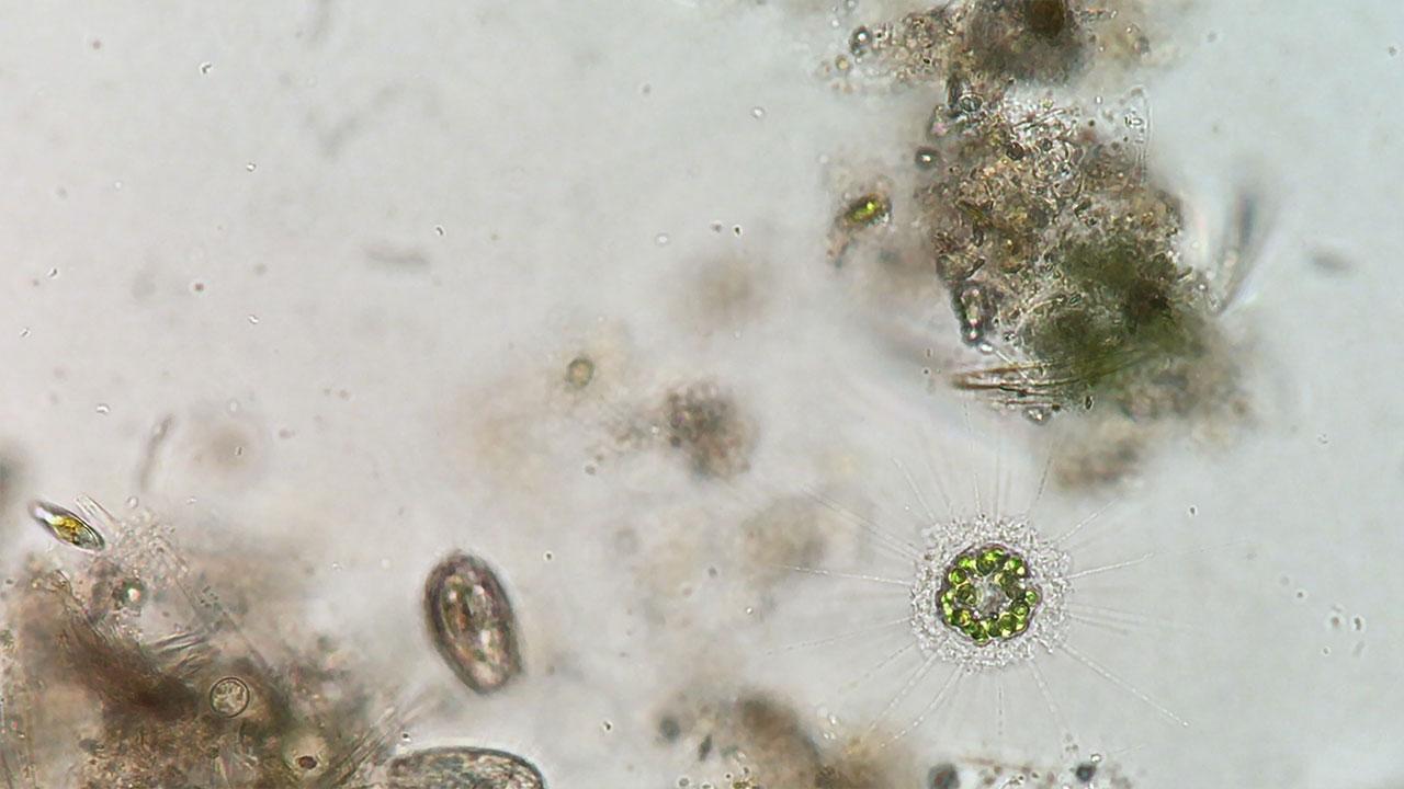 Heliozoan