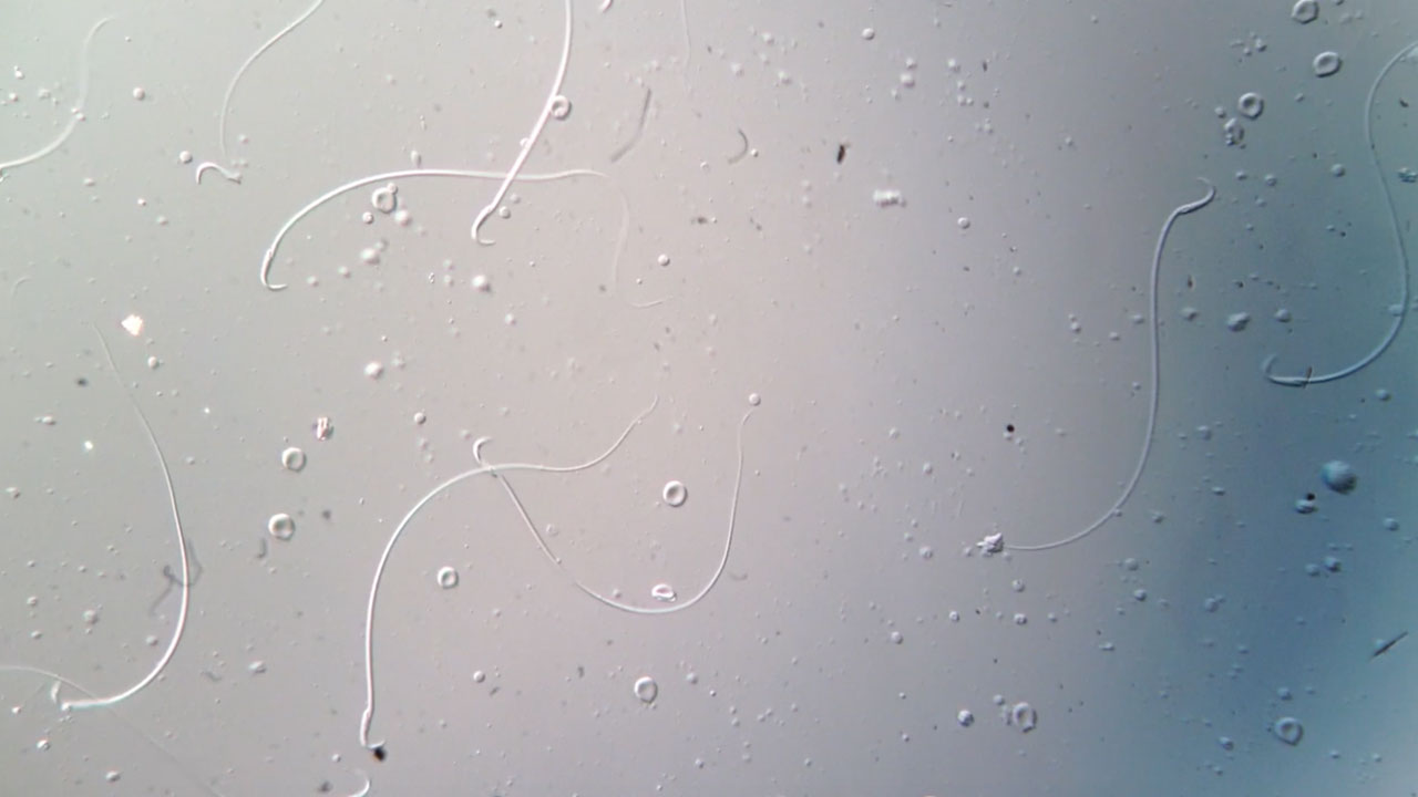 Sperm with hooks