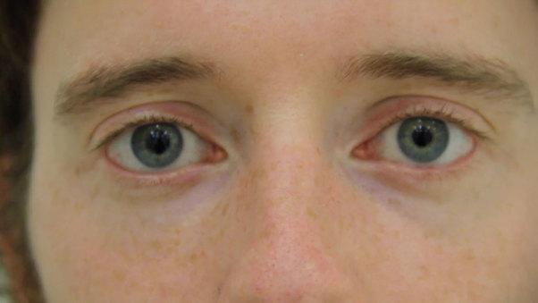 Blindness 2 Sight