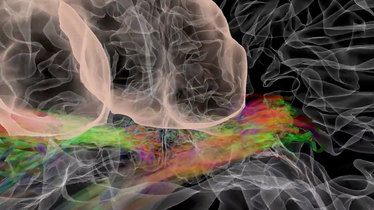 Virtual Brain: Visual Pathways