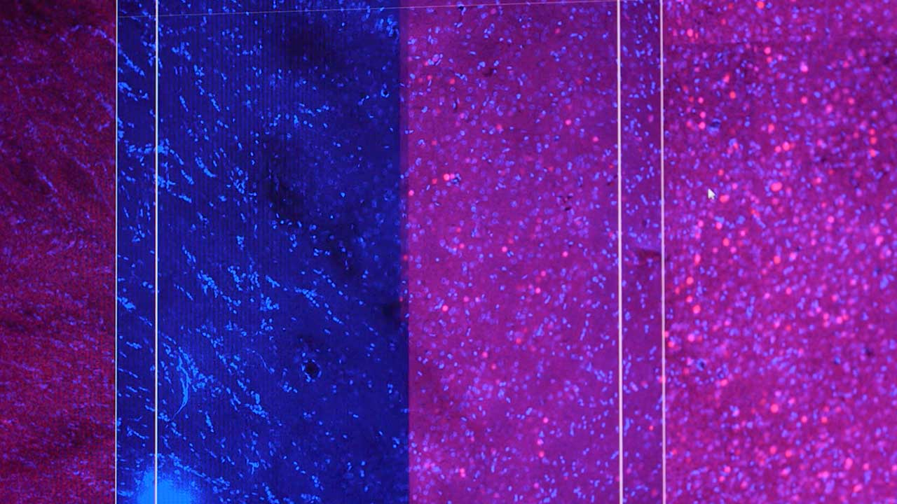 Rat Amygdala Slices Under Confocal Microscopy