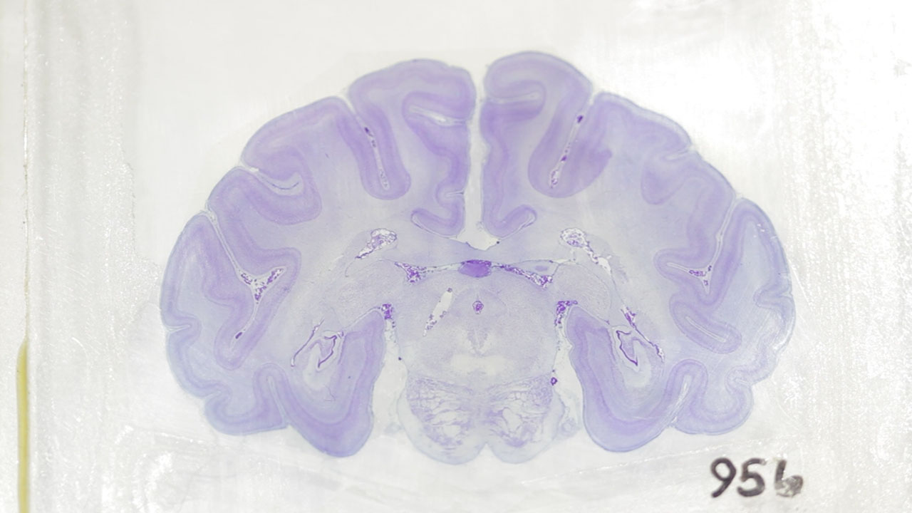 Into the Blues with a Mouse Brain Slice