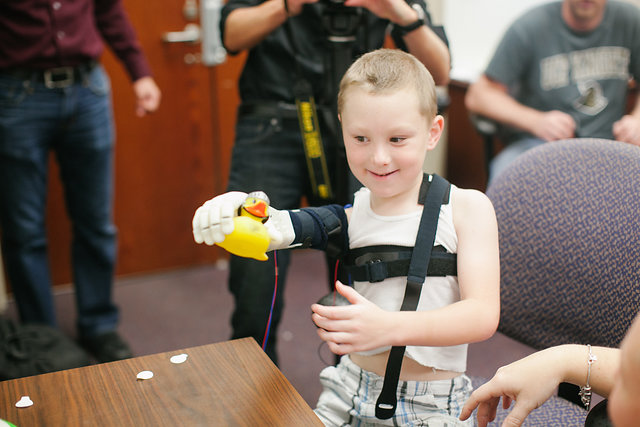 Bionic kid Alex testing his new bionic arm