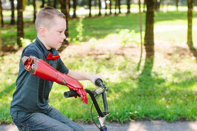 Bionic kid alex riding his bike while using his bionic arm to hold both handle bars