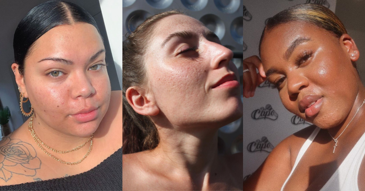 From acne to eczema, follow these 24 skinfluencers to fill your feed with 'real' skin.