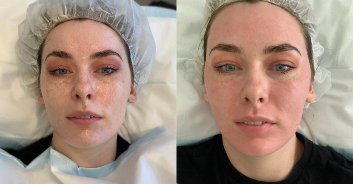 ROADTEST: 'I got Fraxel laser treatment to fade my freckles. Here's exactly what happened.'