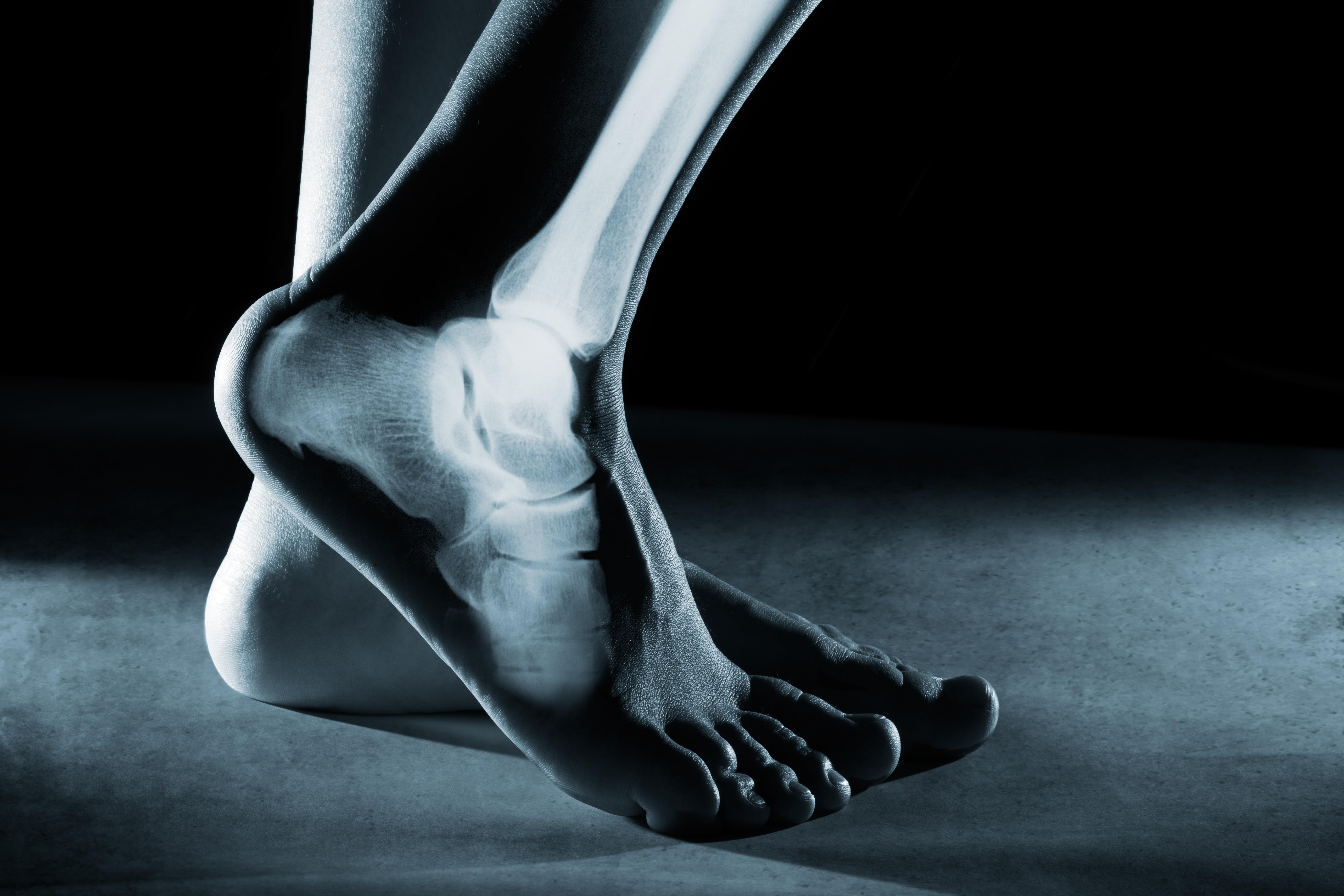 Bimalleolar Ankle Fracture