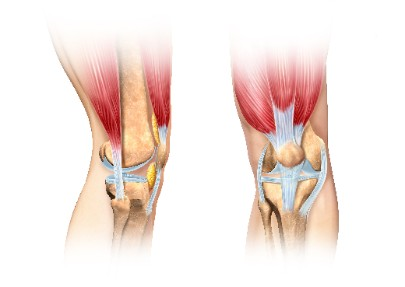 tendon damage in the knee