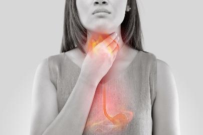 Acid Reflux and Hiatal Hernia