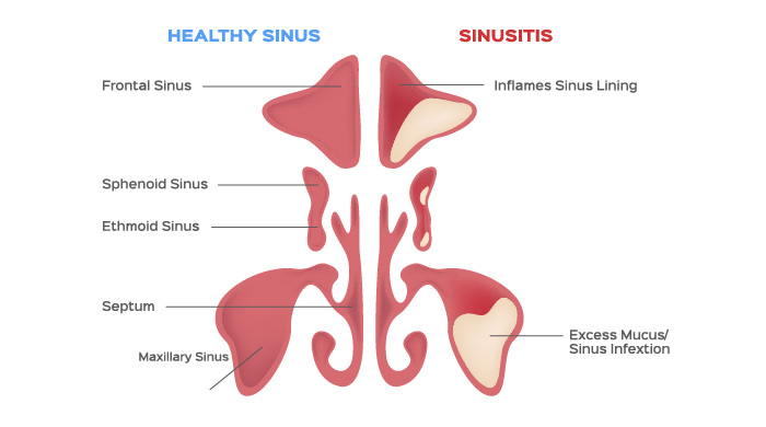 an image reflecting difference between healthy and infected sinus