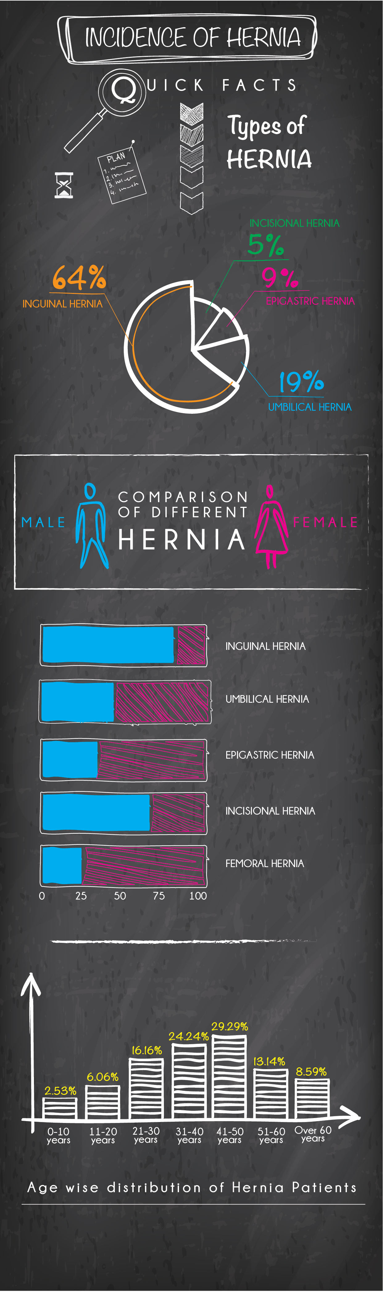 Hernia -Types and Facts