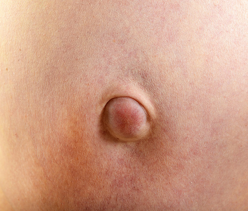 Hernia in adult