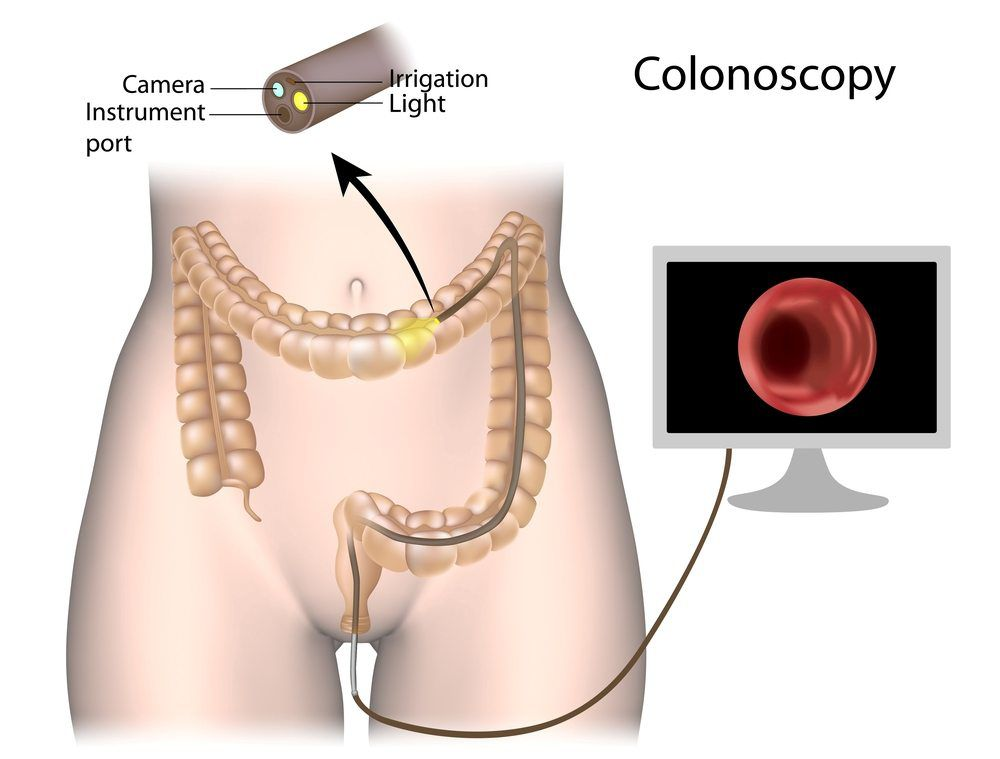 Colonoscopy - diagnosis of fistula