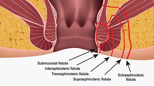 Types of Fistula