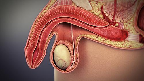 Erectile dysfunction in male