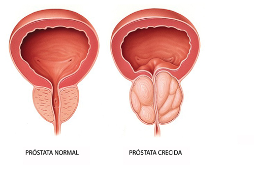 affects the prostate