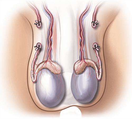 procedure for male sterilization