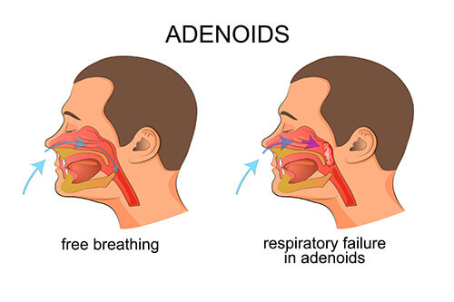 pictorial representation of adenoid