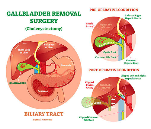 Cholecystectomy- Gallbladder Removal Surgery including gallbladder, liver, stomach, pancreas| Preoperative and Postoperative Condition