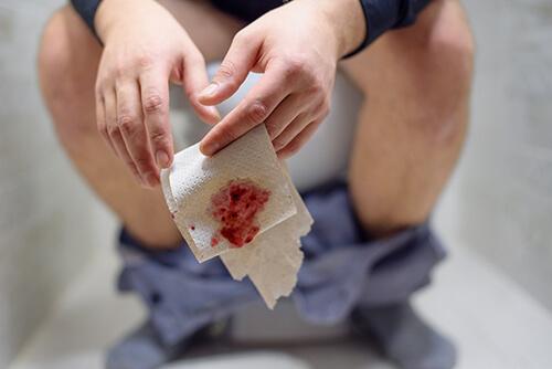Bleeding Piles Causes