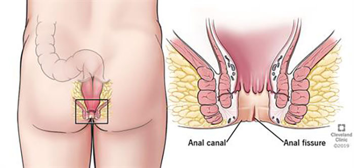 portraying anal fissure through the diagram
