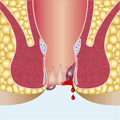 pictorial representation of anal fissure