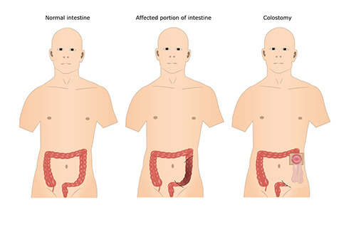 portraying colorectal treatment surgery procedure