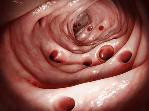 pictorial representation of diverticulitis a colorectal disease