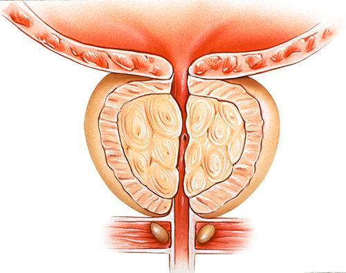 hyperplasia for hysterectomy