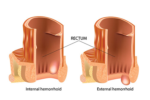 diagram showing internal and external hemorrhoids