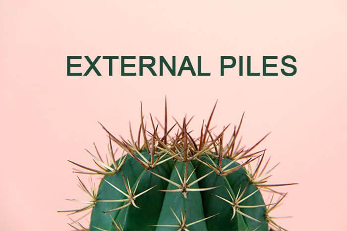 external piles inside rectum walls