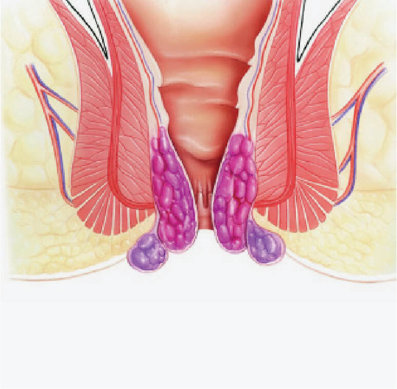 pictorial view of condition of hemorrhoids