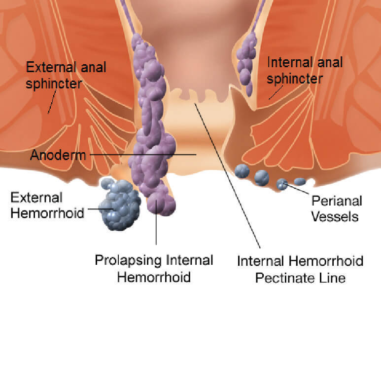 pictorial view of prolapsing hemorrhoid