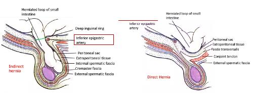 Direct-indirect hernia