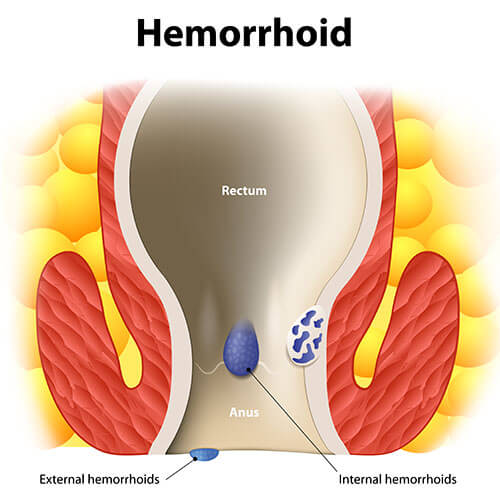 Internal and external hemorrhoids