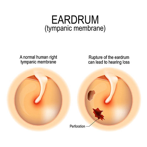 Advanced treatment of Ruptured eardrum