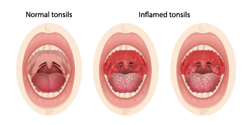 an image showing normal and infected tonsils